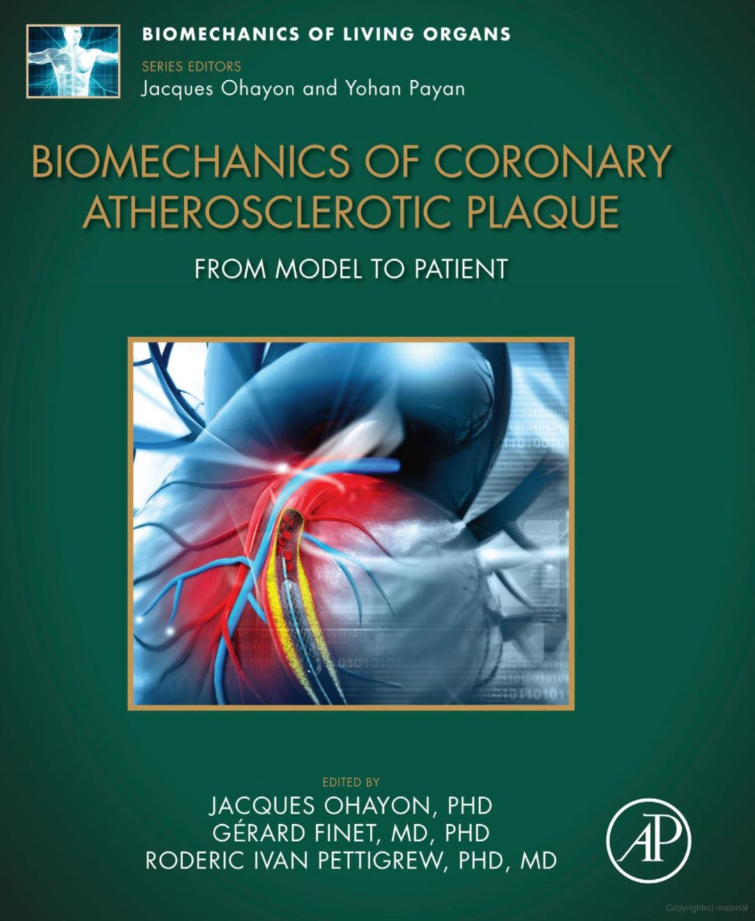 """""""Biomechanics of Coronary Atherosclerotic Plaque: From Model to Patient"""